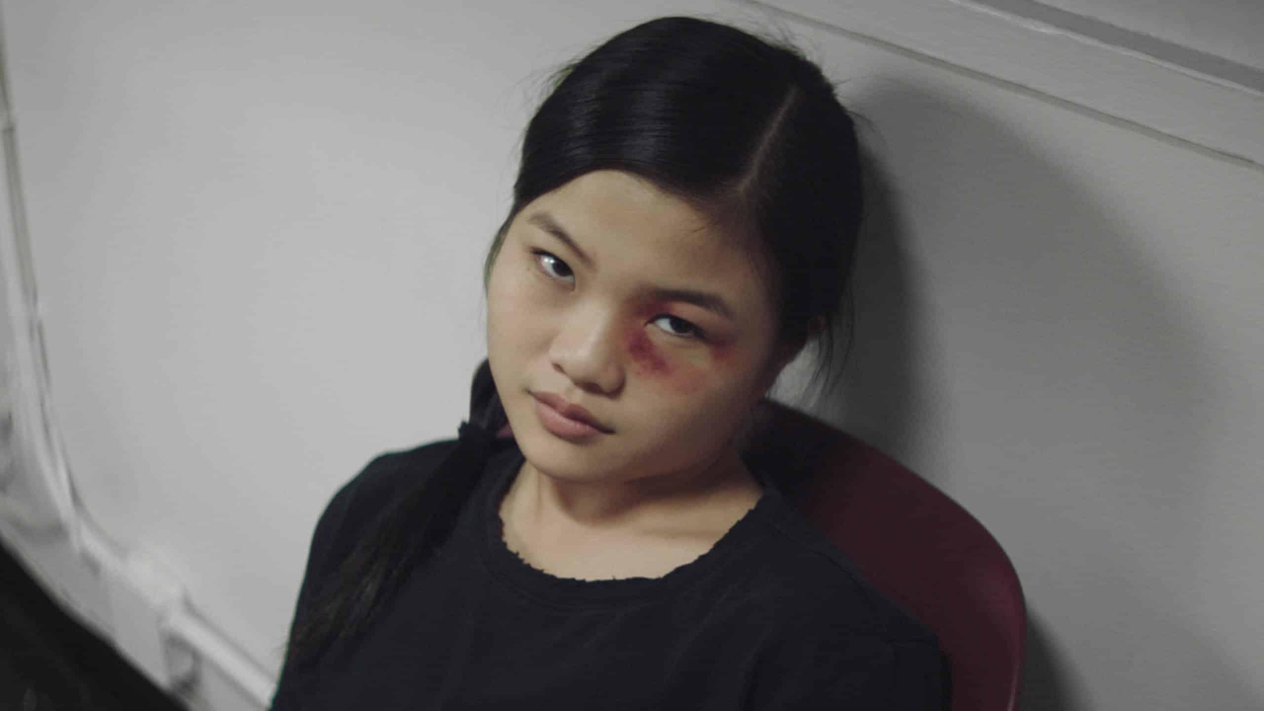 Sammy (Miya Cech) with a black eye.
